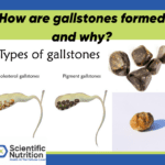 Gallstones, bile, and minerals all affect your gallbladder health!