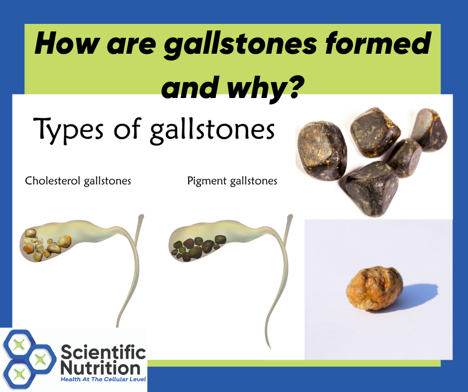 You are currently viewing Gallstones, bile, and minerals all affect your gallbladder health!