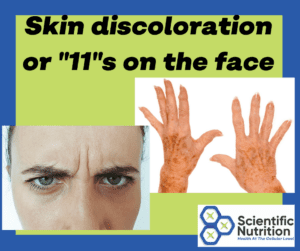 Your skin can show signs of gallstones and liver issues.