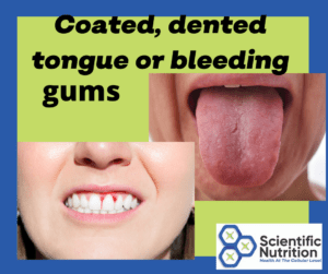 Your mouth can be telling you that you have gallstone, liver, and digestive issues.