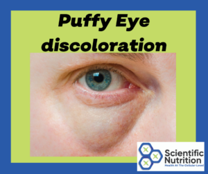 Your eyes can show you signs of gallstone issues.