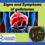 Signs and symptoms of gallstones causing health issues