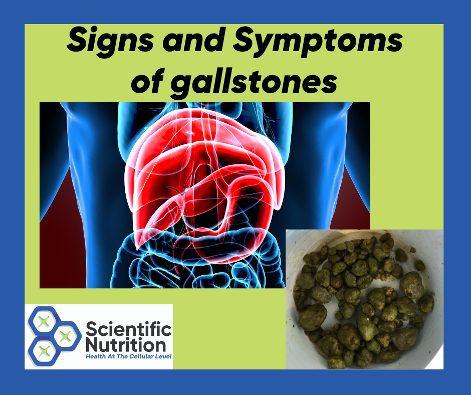 You are currently viewing Signs and symptoms of gallstones causing health issues