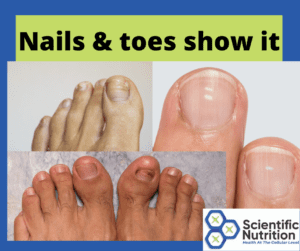 Your nails and toes can be telling you to correct liver issues.